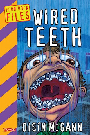 Forbidden Files: Wired Teeth